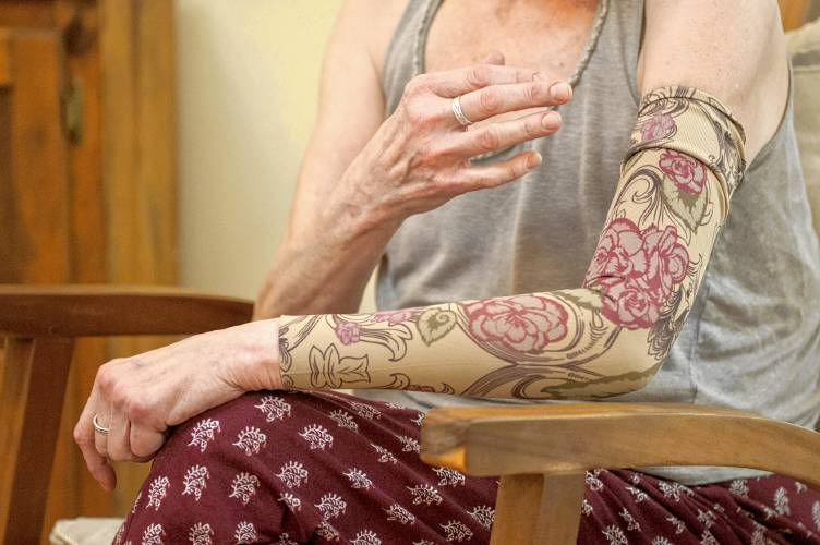 Image result for What Does Lymphedema Feel Like?